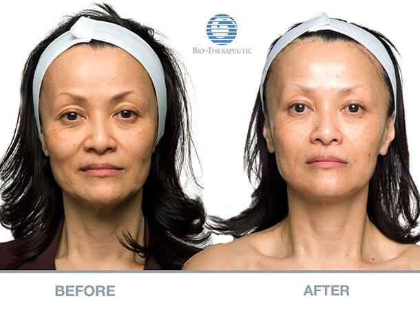 microcurrent-facials-before-and-after