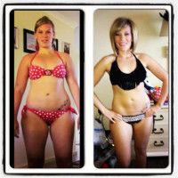 HCG Diet Before and After - Bathing Suit